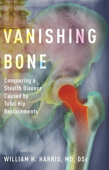 Vanishing Bone