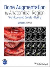 Bone Augmentation by Anatomical Region
